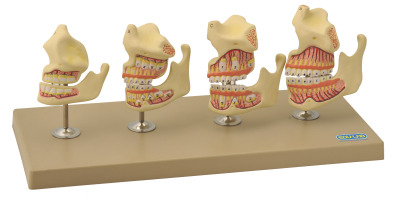 Model, Dentition Development  set of 4