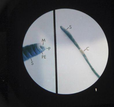 Microslide Lesson Set - The Earthworm  (Pk 10)